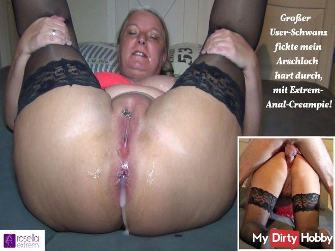 Big user cock fucked my asshole hard, with extreme anal creampie!