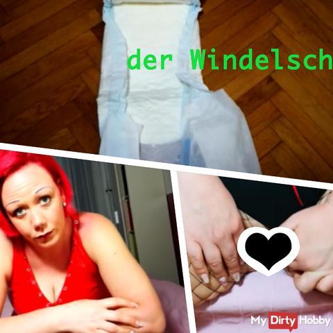 User request: the Windelscheisser