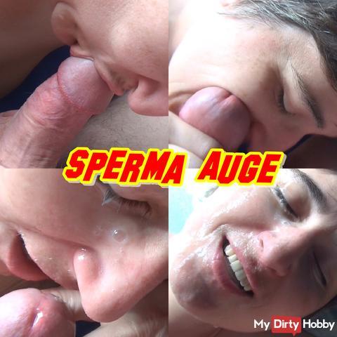sperm eye